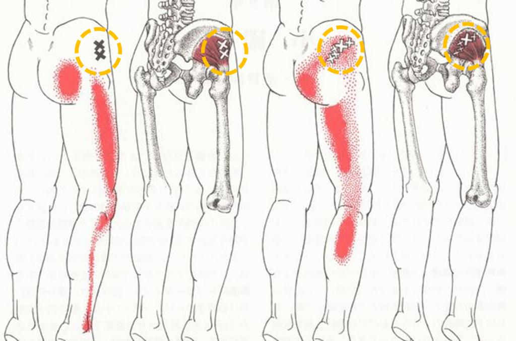 坐骨神経痛 臀部TPT